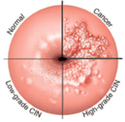 hpv treatment for abnormal cells